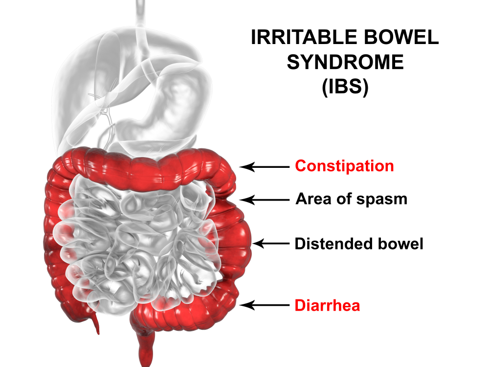 IBS_Syndrome